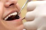 Хирургия (удаление зубов)