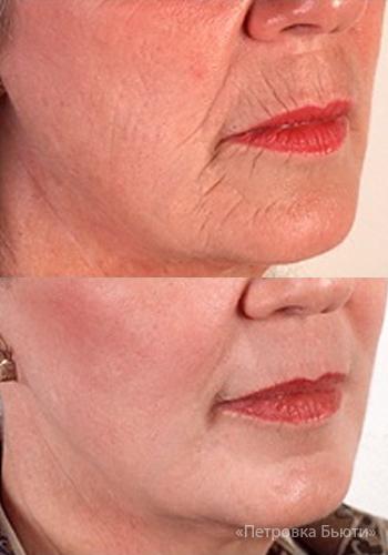 Как вылечить кожу от пигментации